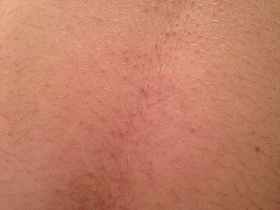 permanent-hair-removal-through-electrolysis-method-zurich-before.jpg