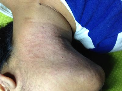 permanent-hair-removal-through-electrolysis-method-zurich-img_0870.jpg