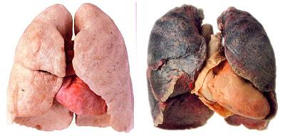 why-do-so-many-people-zurich-smoke-healthy-lungs-vs-unhealthy-lungs.jpg