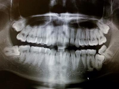wisdom-teeth-removal-urgh-image.jpg
